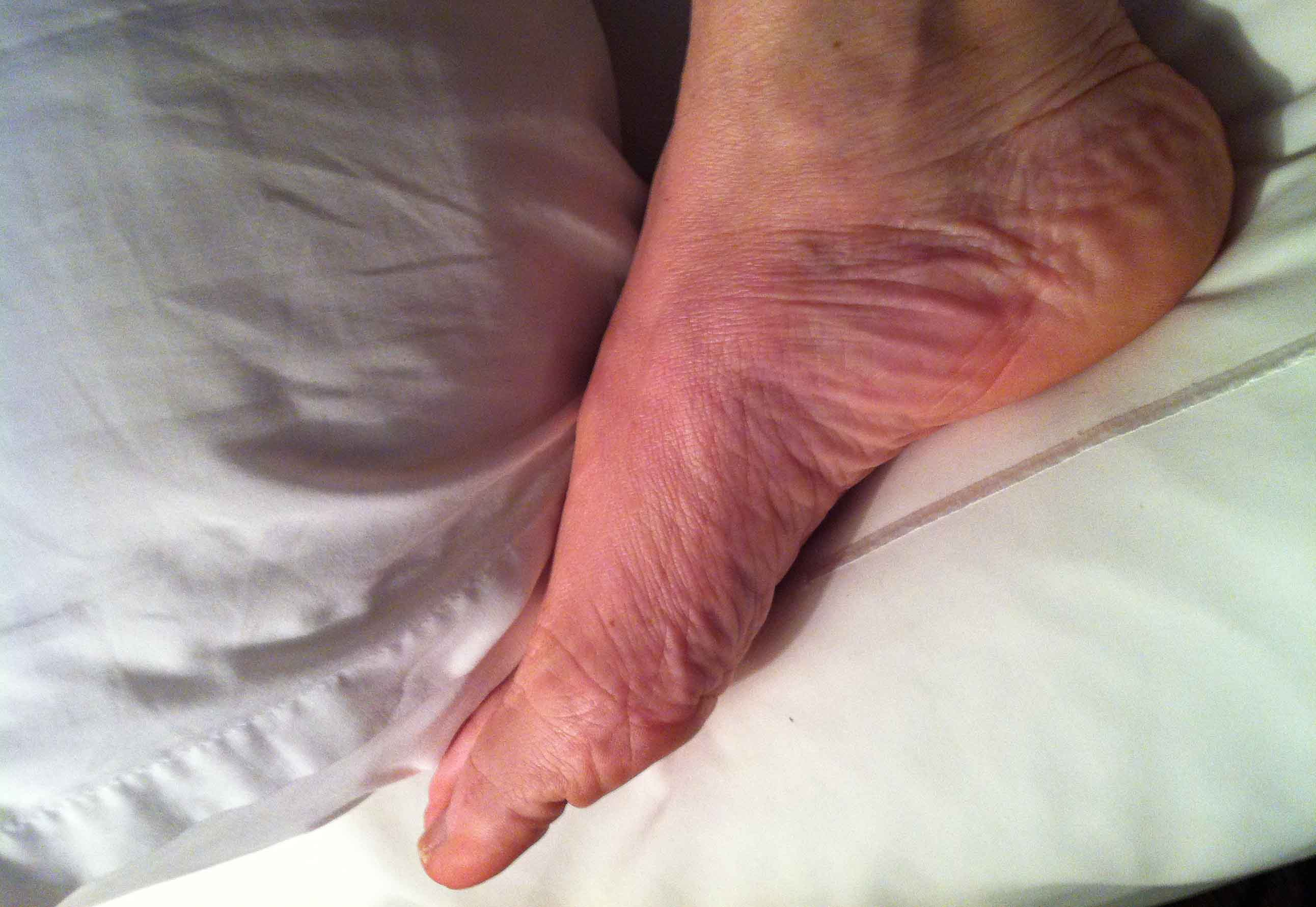 foot rashes that itch
